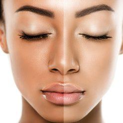 روشن کننده پوست
